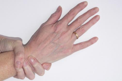 marfan-syndrom.jpg